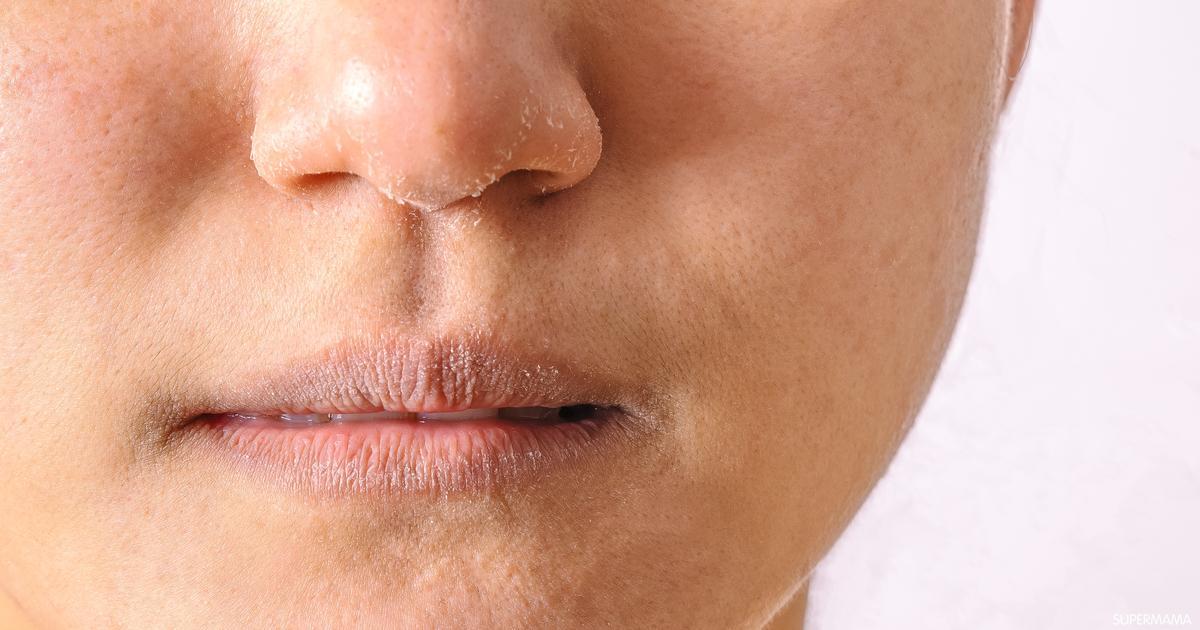 ما هي كيفية علاج جفاف الجلد؟ .. التفاصيل هنا !!